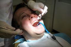 Dental check up. Dental checkup with dental tools probe, mirror and suction tube in mouth. Dentist is examining of patient teeth. Dental check up. Dental Stock Image