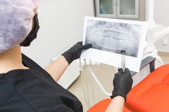 Dental clinic. Reception, examination of the patient. Teeth care. Dentist looks x-ray picture of a patient`s jaw stock image