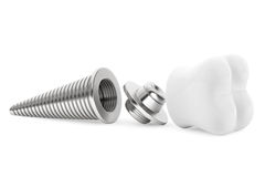 Dental concept. Tooth Implant Stock Photo