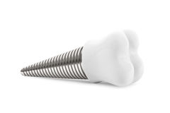 Dental concept. Tooth Implant Stock Photography