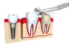 Dental crown , implant and teeth Stock Images