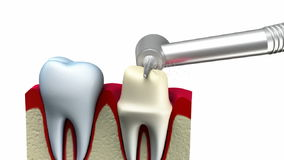 Dental crown installation process stock video footage