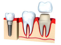 Dental crown installation process Royalty Free Stock Photography