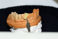 Dental crown made of metal and ceramic to four elements Royalty Free Stock Photography