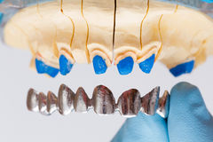 Dental Crown Royalty Free Stock Photos