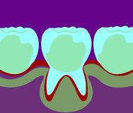 Dental Crowns Stock Image
