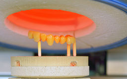 Dental crowns, ceramics, furnace Stock Image