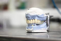 Dental dentist objects Royalty Free Stock Images
