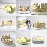 Dental dentist objects collage Stock Photo