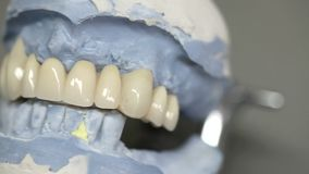 Dental dentist objects implants Stock Image