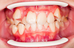 Dental displacement. Which needs orthodontic treatment Royalty Free Stock Photos