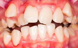 Dental displacement. Which needs orthodontic treatment Stock Image