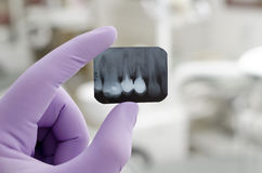Dental Stock Image