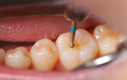 Dental drilling Royalty Free Stock Photography