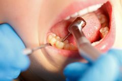 Dental drilling Stock Photo