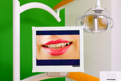 Dental equipment - LCD display Stock Photography