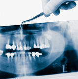 Dental equipment Stock Image