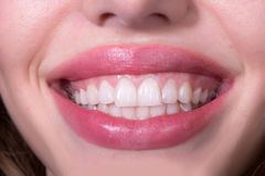 Dental female smile Royalty Free Stock Images