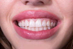 Dental female smile. Closeup view of female smiling happy opne mouth with soft pink natural lips and white clean perfect healthy beautiful teeth on medical Stock Photography