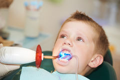 Dental filing of child tooth by Royalty Free Stock Image