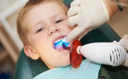 Dental filing of child tooth by Royalty Free Stock Photos