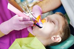 Dental filing of child tooth by ultraviolet light Stock Photo