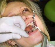 Dental filling Stock Photo