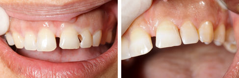 Dental filling treatment Royalty Free Stock Photos