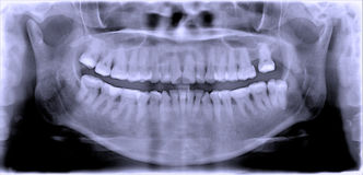 Dental  film. Full mouth dental x-ray Royalty Free Stock Photography