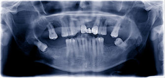 Dental  film Royalty Free Stock Photos
