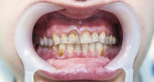 Dental fluorosis Stock Photo