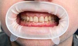 Dental fluorosis Stock Photo