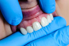 Dental gum teeth implants Stock Photos
