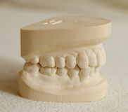 Dental gypsum model mould of teeth Royalty Free Stock Photography