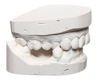 Dental gypsum model mould of teeth in plaster Stock Photo