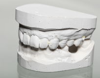 Dental gypsum model mould of teeth in plaster Royalty Free Stock Photo