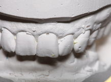 Dental gypsum model mould of teeth in plaster Stock Photos