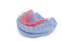 Dental gypsum models and dental brace Stock Photos