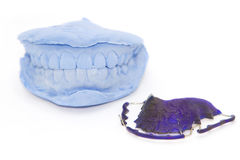Dental gypsum models and dental brace Stock Photo