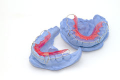 Dental gypsum models and dental brace (Retainer) Royalty Free Stock Photo
