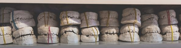 Dental gypsum models of jaws in dentist`s office royalty free stock images