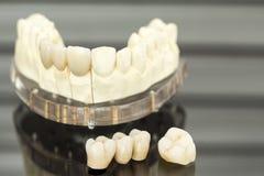Dental health care. Close up Stock Photo