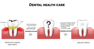 Dental health care Stock Photography