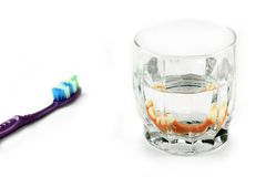 Dental health concept: partial denture inside glass next to toothbrush Royalty Free Stock Image