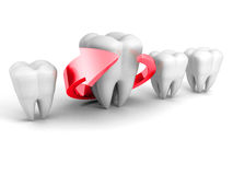 Dental Health Concept. Red Arrow Around Tooth Stock Photo