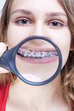 Dental Health and Hygiene Concepts. Caucasian Female Demonstrating Teeth Royalty Free Stock Photography