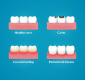 Dental health illustration Royalty Free Stock Images