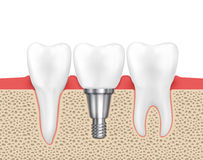 Dental human implant Stock Image