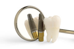 Dental implant. Wisdom tooth, mirror and dental titanium implant Royalty Free Stock Photography
