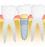 Dental Implant. Detailed view. Illustration Royalty Free Stock Photos